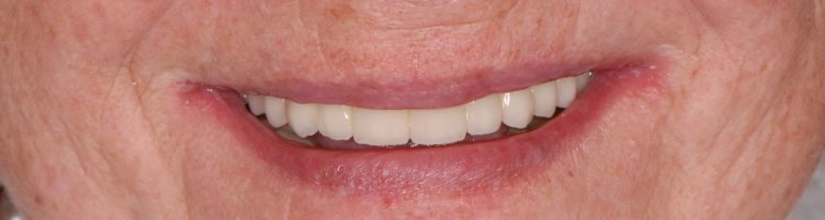 przykład pacjenta leczonego za pomocą implantów