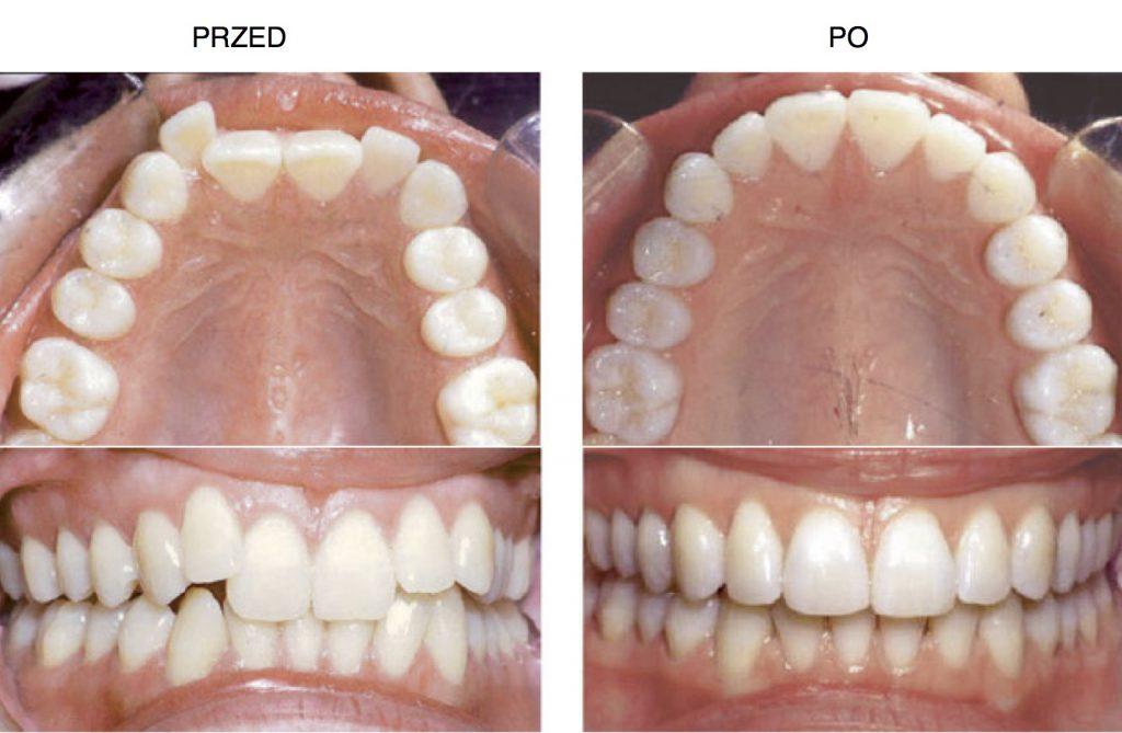 przed i po leczeniu aparatem invisalign