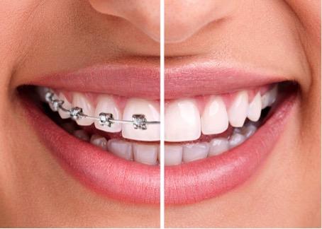 ortodoncja3