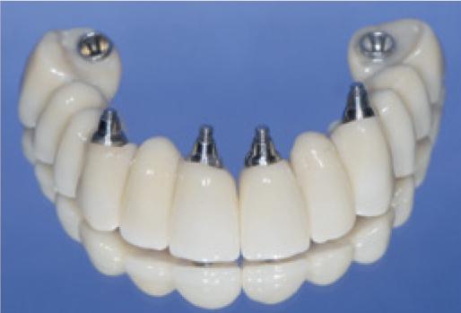Implanty na których wykonano stałe mosty przykręcone do implantów