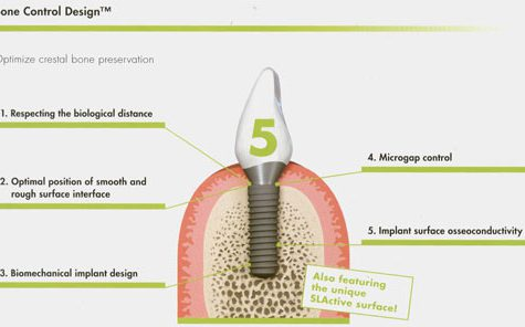 budowa implantu