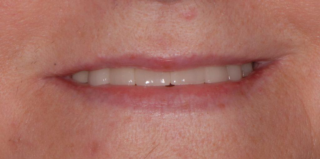 Zęby przednie dolne odbudowane materiałem Enamel