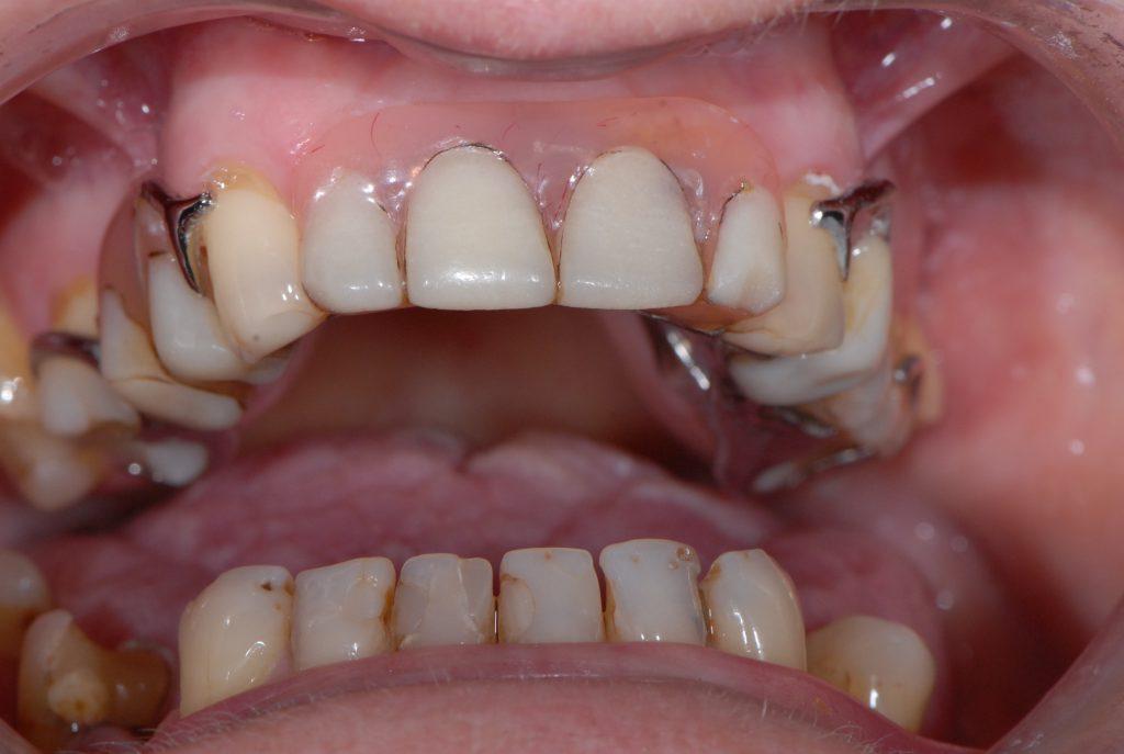 Pacjentka z wadą zgryzu, ruchomymi protezami oraz nieestetycznymi koronami i wypełnieniami