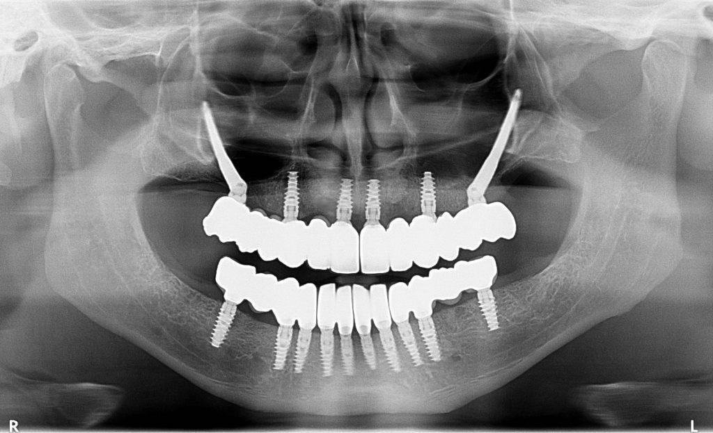leczenie implantologiczne na rtg
