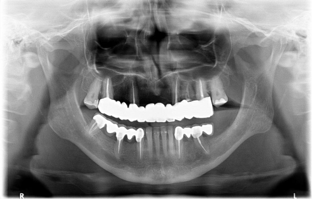 zdjęcie rentgenowskie zębów