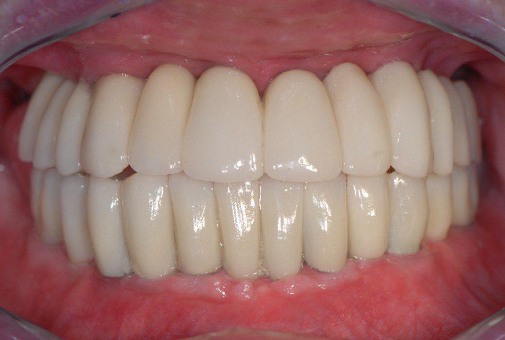 gotowe implanty