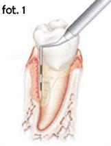 regeneracja tkanki dzięki Emdogain