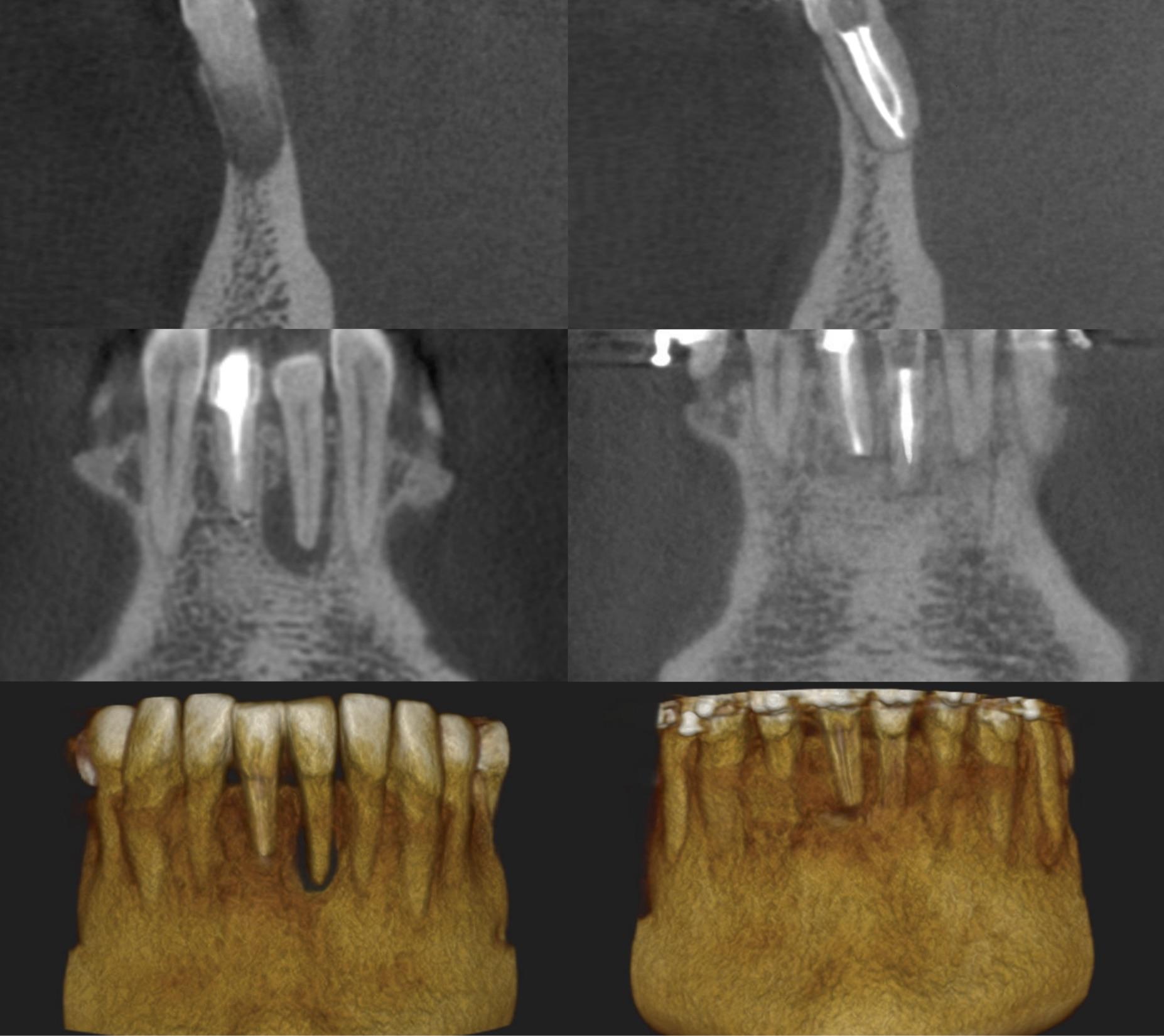 endodoncja mikroskopowa - przed i po