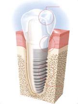 przekrój zęba z implantem
