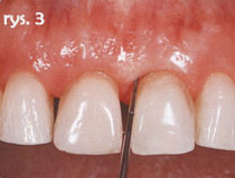 zęby po zakończeniu leczenia ortodontycznego