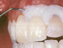 Wybielanie zębów Opalescence Xtra Boost