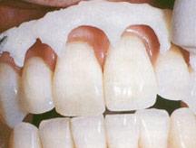 Wybielanie zębów preparatem Opalescence Xtra Boost