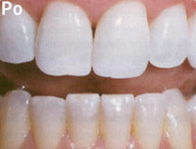 Po wybielaniu zębów preparatem Opalescence Xtra Boost