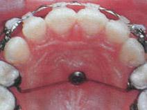 implant kotwiący w ortodoncji