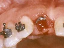 implant w ortodoncji