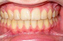 równe zęby