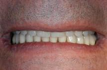 implanty Ankylos