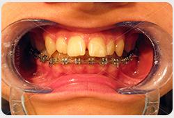 aparat na zębach