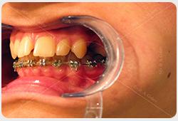 aparat stały na zębach