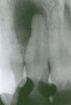 tworzenie się tkanki kostnej - zdjęcie rtg