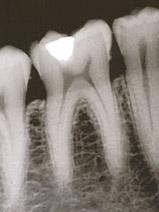Zdjęcie zębów wykonane przez rentgen stomatologiczny