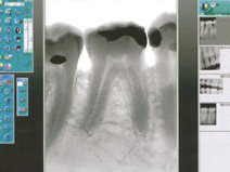 Zdjęcie rtg zęba
