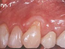 recesja w obrębie zęba