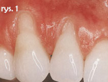 szerokie recesje w obrębie zębów