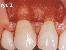 powierzchnie zębów pokryte błoną resorbowalną