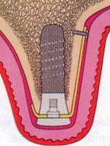 zabieg wprowadzenia implantu