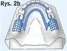 przykład protezy ruchomej