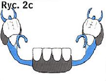 rysunek protezy ruchomej