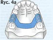 proteza ruchoma rysunek