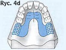 proteza ruchoma