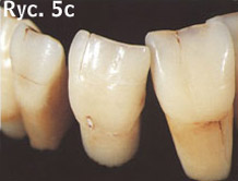 zniszczone zęby