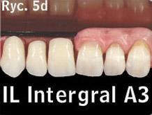 indywidualne przygotowanie zębów