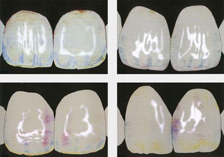 mapa kolorystyczna zębów