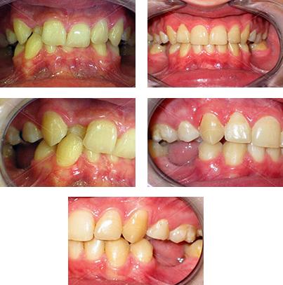 efekt przed i po leczeniu aparatem