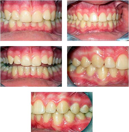 przed i po leczeniu aparatem