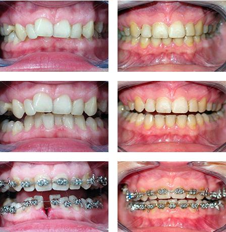 przed i po leczeniu ortodontycznym