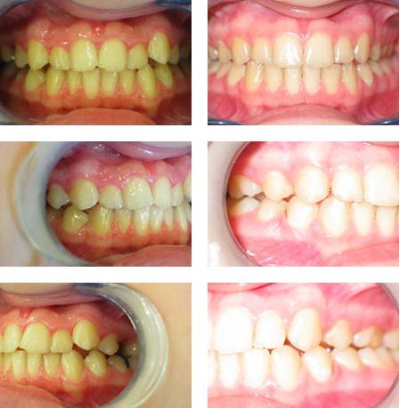 efekt przed i po leczeniu ortodontycznym