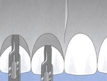 chirurgiczne wydłużanie koron klinicznych zębów
