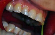 Malowanie zębów bondem