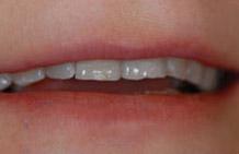 Zdjęcie pacjentki w uśmiechu przed leczeniem