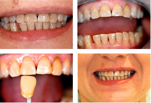 zęby przed i po założeniu licówek