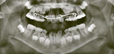 aparat ortodontyczny na rtg