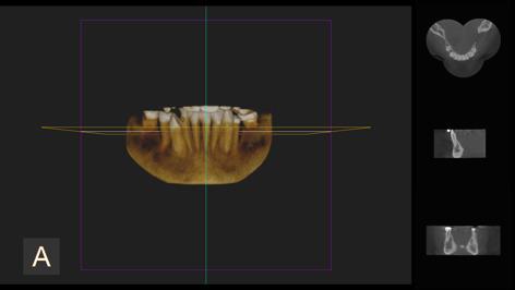 zdjęcie 3D - żuchwa