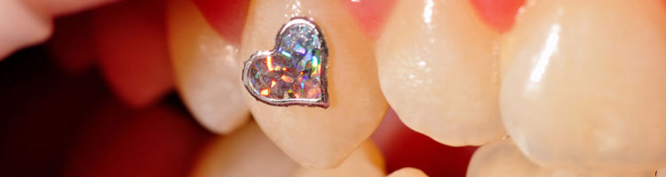 cekinowe serce na zębie