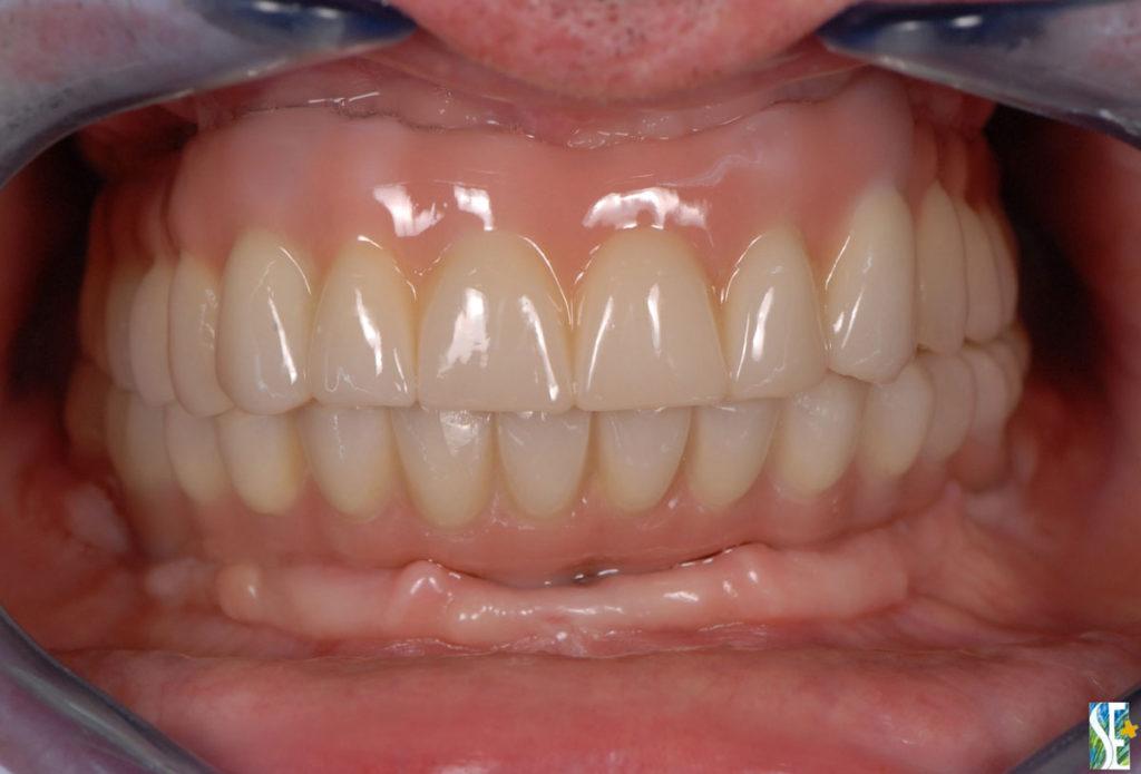 implanty zygomatyczne