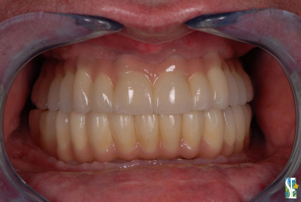 implanty efekt końcowy